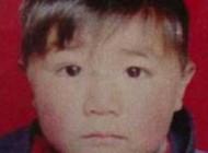 زندگی غمناک کودکی شش ساله و بدون صورت + عکس