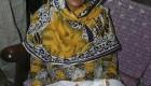 تولد نوزاد عجیب و باورنکردنی شش پا در پاکستان + عکس