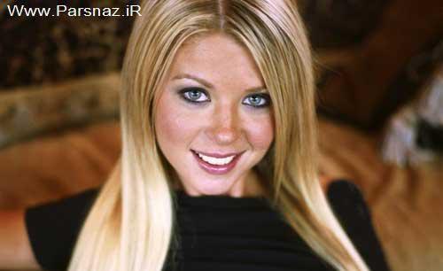 افراد مشهور زن که زیباییشان را مدیون عمل جراحی هستند