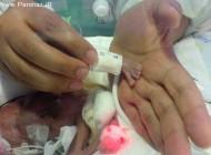 کوچکترین نوزاد دنیا در آمریکای جنوبی!! + عکس
