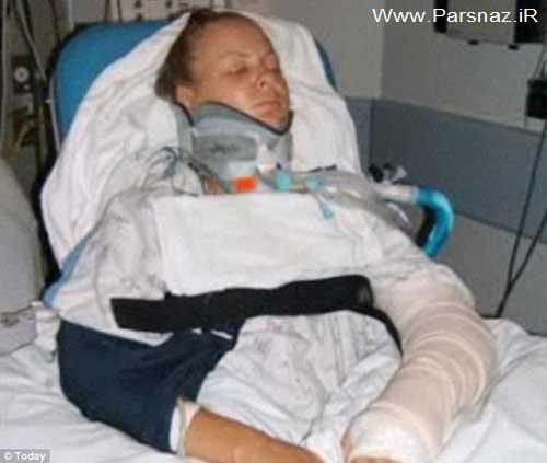کابوس ترسناک این دختر دانشجو بعد از تصادف + عکس