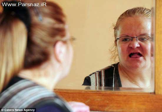 زنی که برای لبخند زدن باید 15 هزار پوند هزینه کند! + عکس
