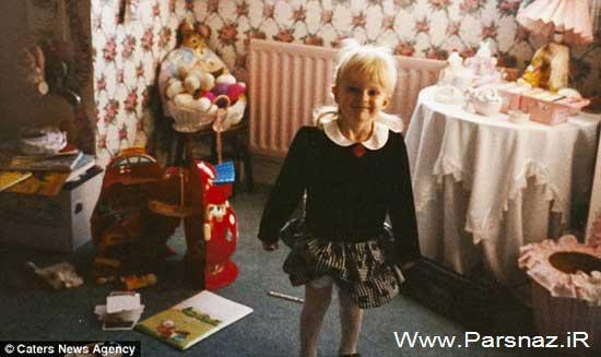 دختری با بیماری عجیب که او را مثل مجسمه می کند +عکس