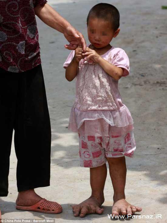 دختری عجیب با پاهای غول پیکر + عکس