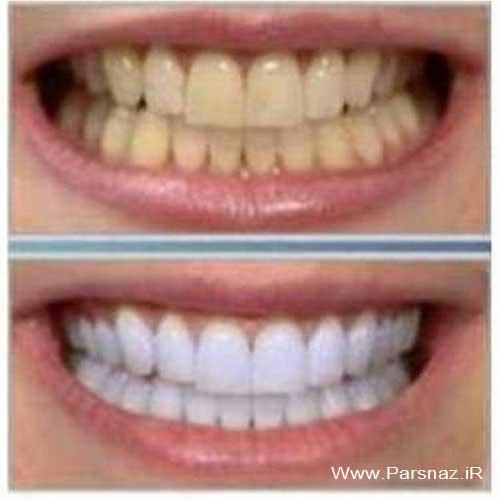 استفاده از سفید کننده های دندان در خانه