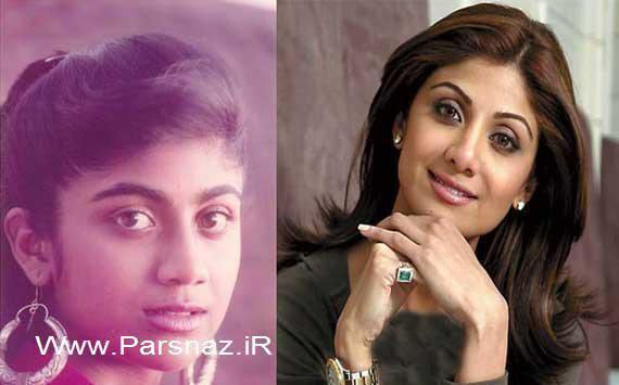 www.parsnaz.ir - زنان بازیگر معروف بالیوود قبل و بعد از جراحی زیبایی + عکس