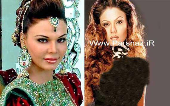 تصاویری از زنان بازیگر معروف بالیوود قبل و بعد از جراحی زیبایی