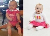 بیماری عجیب این نوزاد 9 ماه بدون پوست پا + عکس
