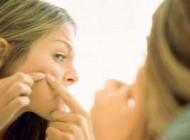 چرا جوش های صورت شما درمان نمی شوند؟