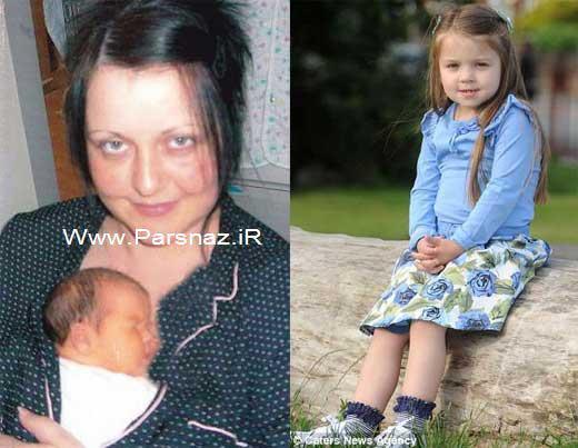 دختری که درون رحم مادرش دچار سکته مغزی شد + عکس