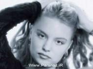 عکسهایی از دختر زیبایی که با عمل جراحی شبیه هیولا شد