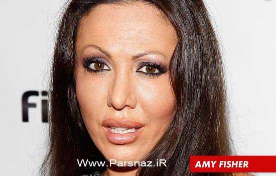 زنان مشهور هالیوود که بیش از حد عمل زیبایی کرده اند