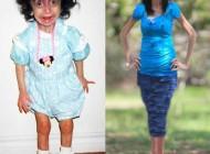صحبت های زشت ترین دختر دنیا از زبان خودش + عکس
