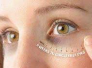 روشی برای درمان تیرگی دور چشم ها