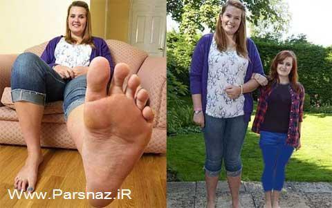 این دختر 19 ساله عجیب پا گنده ترین دختر جهان شد +عکس