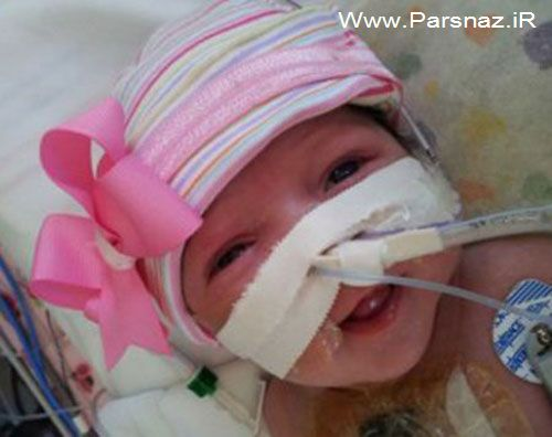 این دختر قلبش بیرون از بدنش بود عمل جراحی شد (عکس)