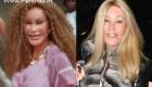 ماجرای زنی که با جراحی زیبایی زیاد به زن گربه ای تبدیل شد