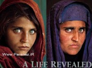 این دختر 20 سال پیش بخاطر چشمان جادویی مشهور شد