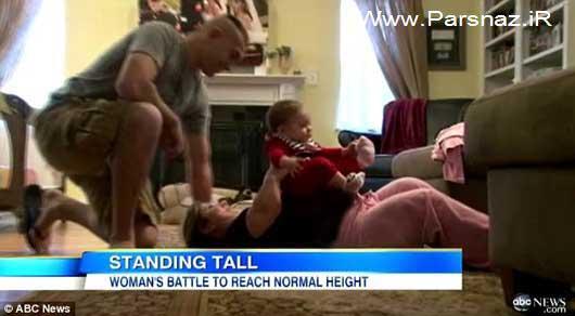 تلاش دردناک یک خانم کوتوله برای افزایش قد!! (عکس)