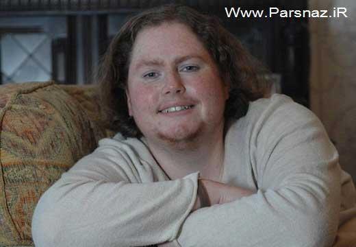 این زن از 20 سالگی موهای صورتش را اصلاح نکرد (عکس)