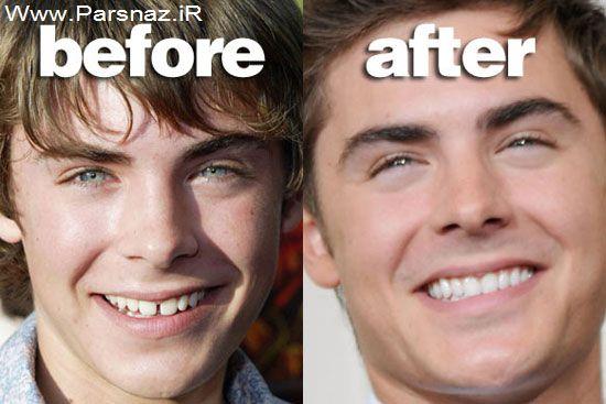 متن های عاشقانه حقوقی عکس هایی از چهره ستاره ها قبل و بعد از معروف شدن