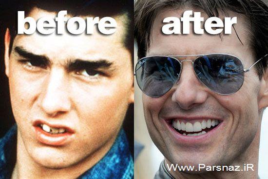 عکس هایی از چهره ستاره ها قبل و بعد از معروف شدن