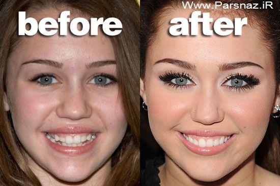 www.parsnaz.ir - عکس هایی از چهره ستاره ها قبل و بعد از معروف شدن