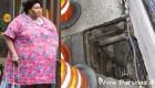 چاقی بیش از اندازه این خانم 32 ساله جانش را نجات داد!