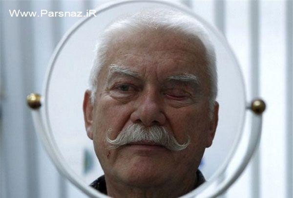 ساخت چشم های مصنوعی توسط این پیرمرد (عکس)