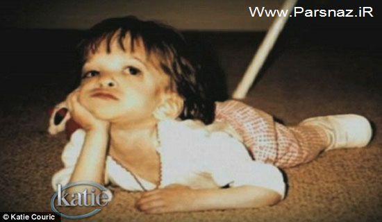 عکس های عجیب این دختر 20 ساله با اندامی کودکانه