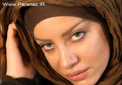پشیمانی این خانم بازیگر ایرانی از عمل زیبایی اش (عکس)