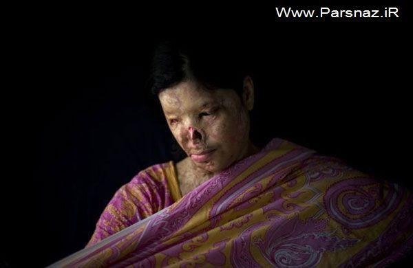 عکس های غم انگیز از زنان قربانی اسید پاشی (18+)