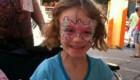 بیماری عجیب این دختر بچه اگر عرق کند می میرد (عکس)
