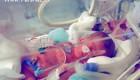 به دنیا آمدن نوزادی از دختر ۹ ساله! (عکس)