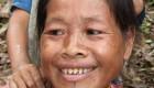 اقدام عجیب خانم های اندونزی برای زیبایی (عکس)