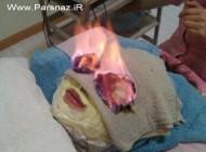گرم ترین درمان زیبایی جدید برای خانم ها (عکس)