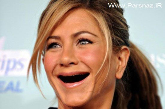 عکس های خنده دار از زنان زیبای هالیوود بدون دندان