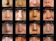 بازیگران ایرانی کدام دماغ عملی هستند!؟ (عکس)
