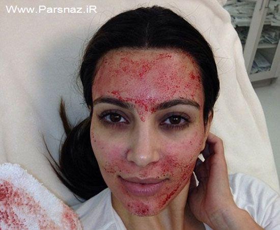 اقدام ترسناک کیم کارداشیان برای زیباتر شدن (عکس)