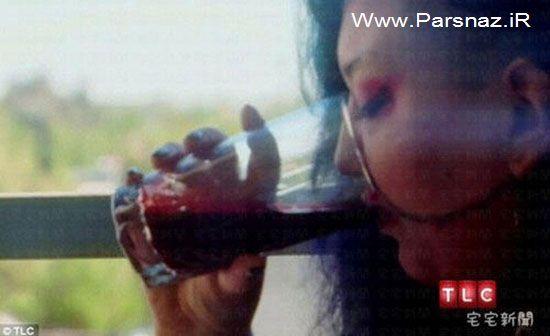 اعتیاد عجیب این خانم به نوشیدن خون (عکس)