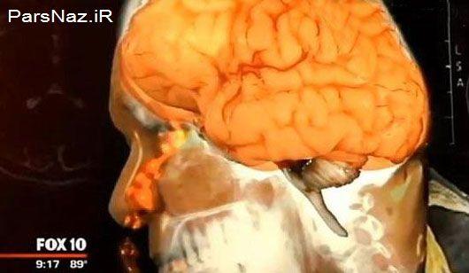 مغز این مرد عجیب از بینی اش چکه می کند (عکس)