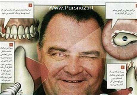 کار جالب در علم پزشکی ، پیوند دندان به جای چشم (عکس)