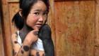 این دختر عجیب با بدنی باورنکردنی و ترسناک (عکس)
