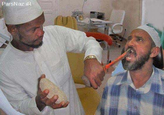 روش های عجیب غریب کشیدن دندان (عکس)