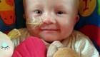 کودکی با نادرترین بیماری جهان (عکس)
