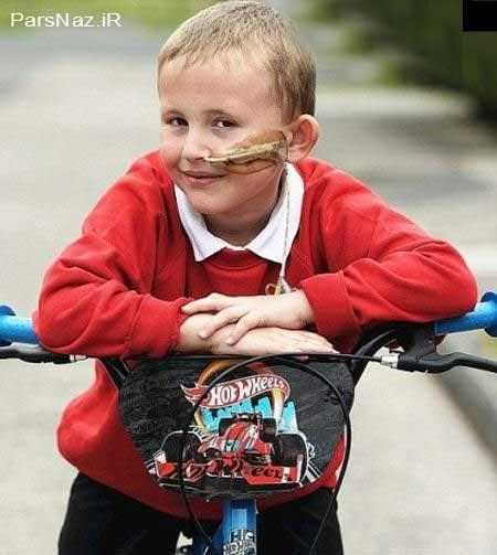 پسر بچه ای که از راه بینی غذا می خورد (عکس)