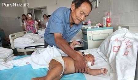 نوزادی که بخاطر شیر خوردن قیچی کاری شد (عکس)