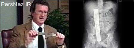 اشتباهات  خطرناک و جبران ناپذیر پزشکی در دنیا (عکس)