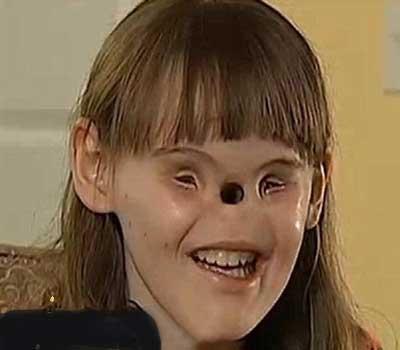 دختری که بدون چشم و بینی بدنیا آمده (عکس)