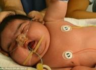 توپولی ترین نوزاد متولد شده در آلمان (عکس)